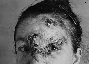 """Collection de photos médicales du Dr. John A. Fordyce, léguées aux archives historiques américaines (Historical Archives of """"National Museum of Health & Medicine"""")"""