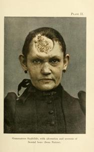 A Practical Treatise on Diseases of the Skin. John V. Shoemaker, 1892.